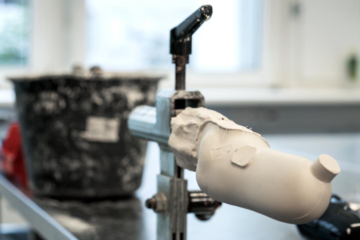 Im Vordergrund ein Teil einer Prothese, im Hintergrund ein verschmutzter Eimer. All dies kommt bei der Orthopädietechnik zu Einsatz