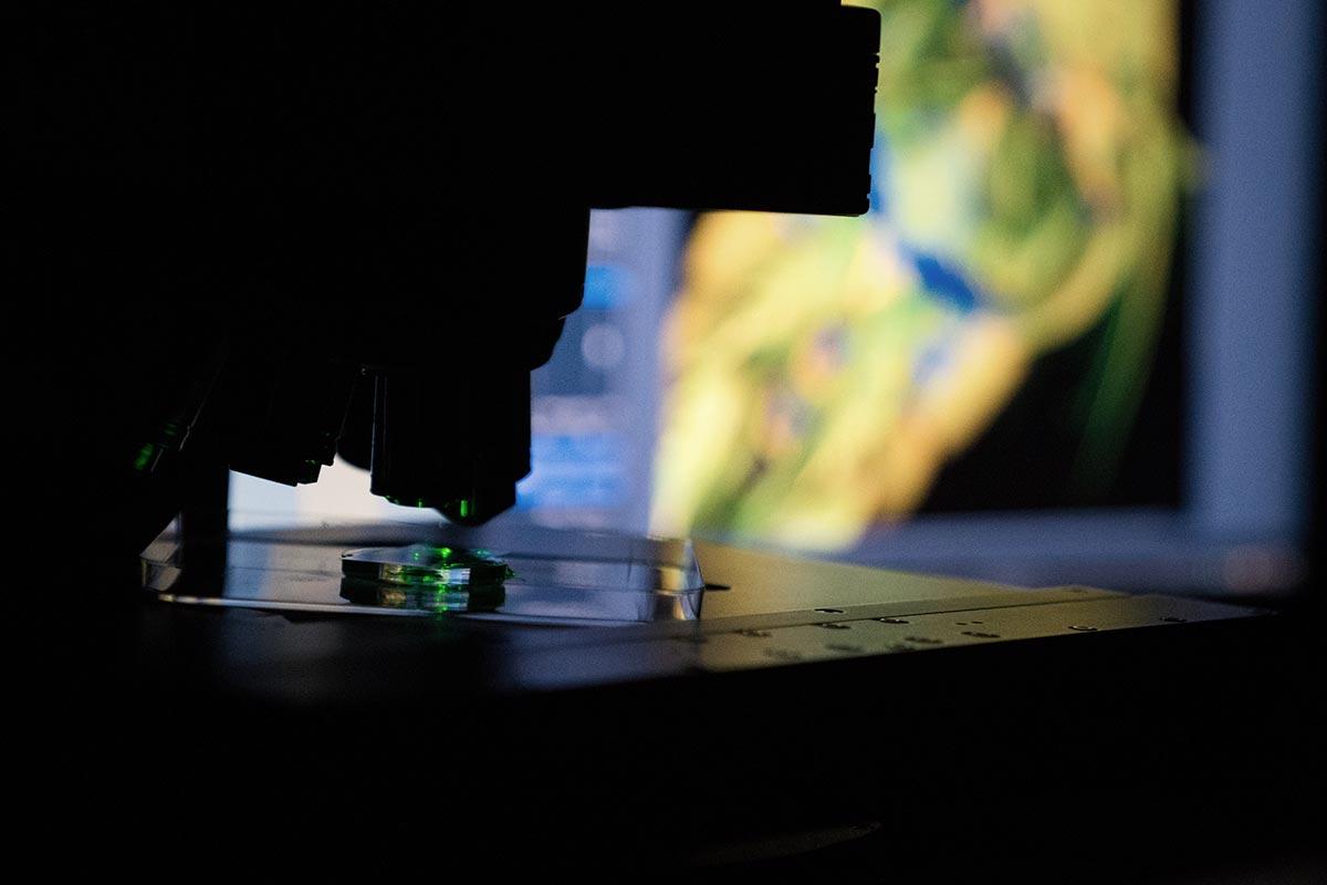 Laser-Mikroskop mit verschwommenem Bildschirm im Hintergrund